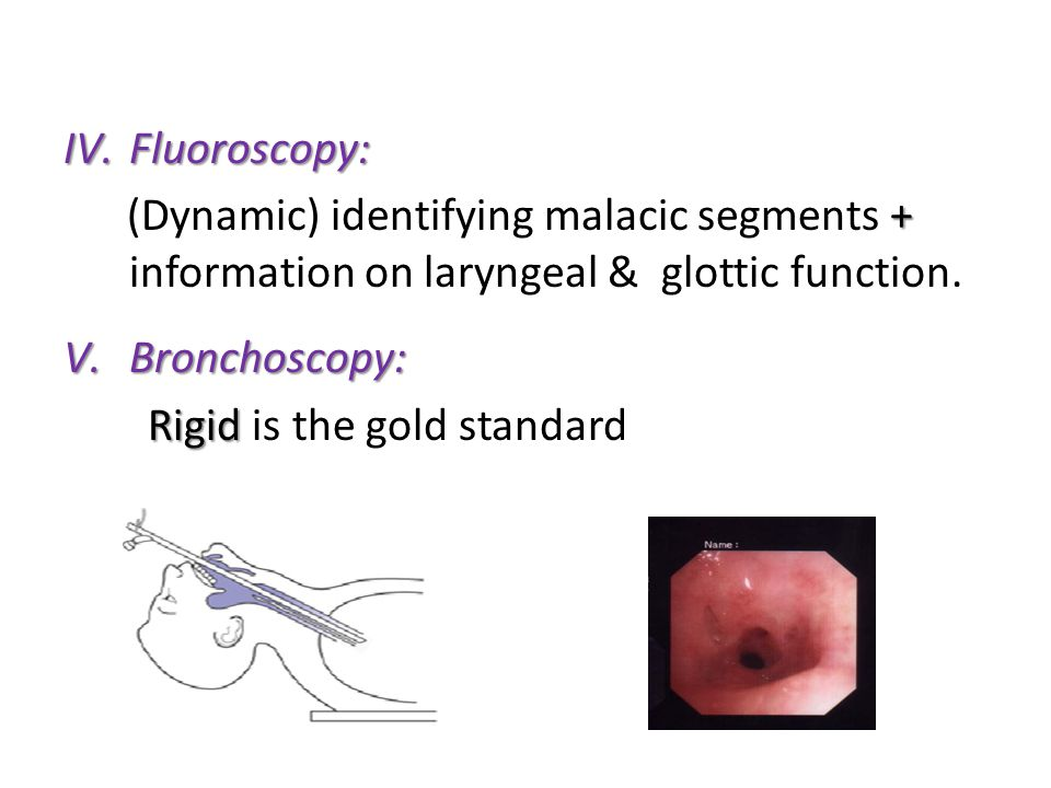 Fluoroscopy: (Dynamic) identifying malacic segments + information on laryngeal & glottic function.