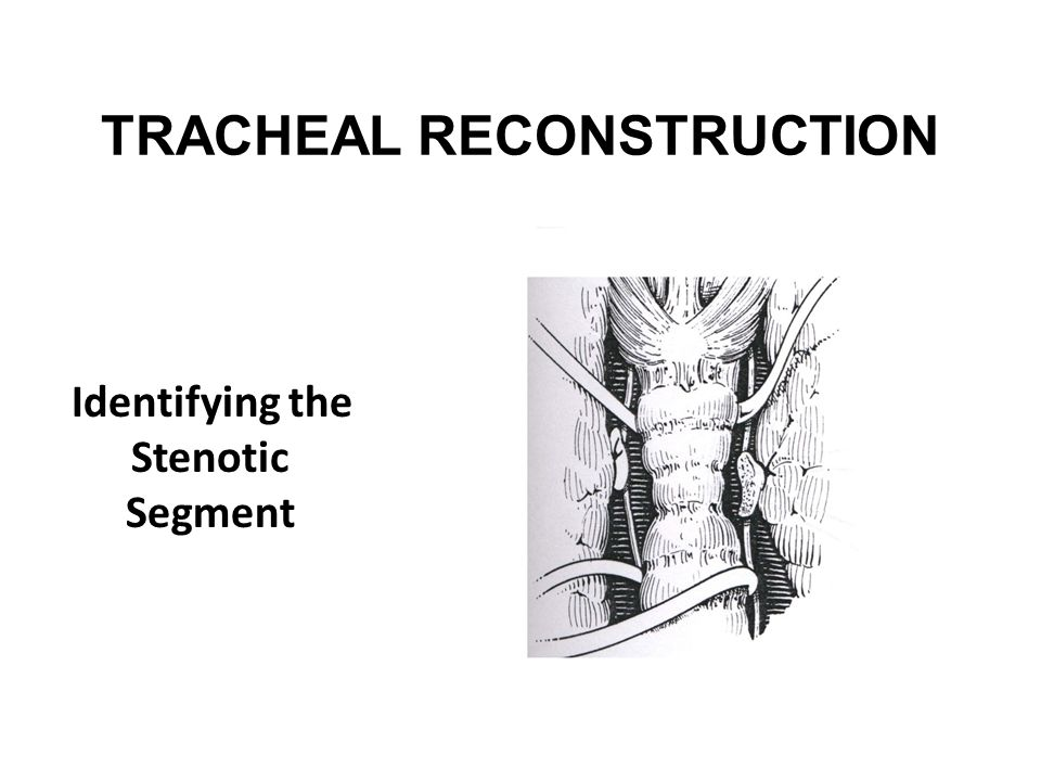 TRACHEAL RECONSTRUCTION