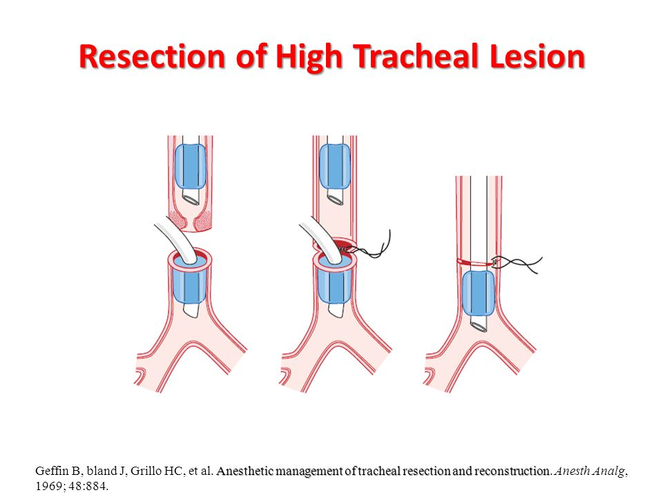 Resection of High Tracheal Lesion