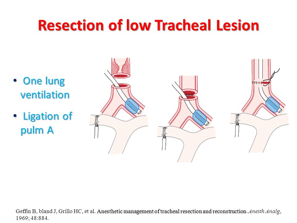 Resection of low Tracheal Lesion