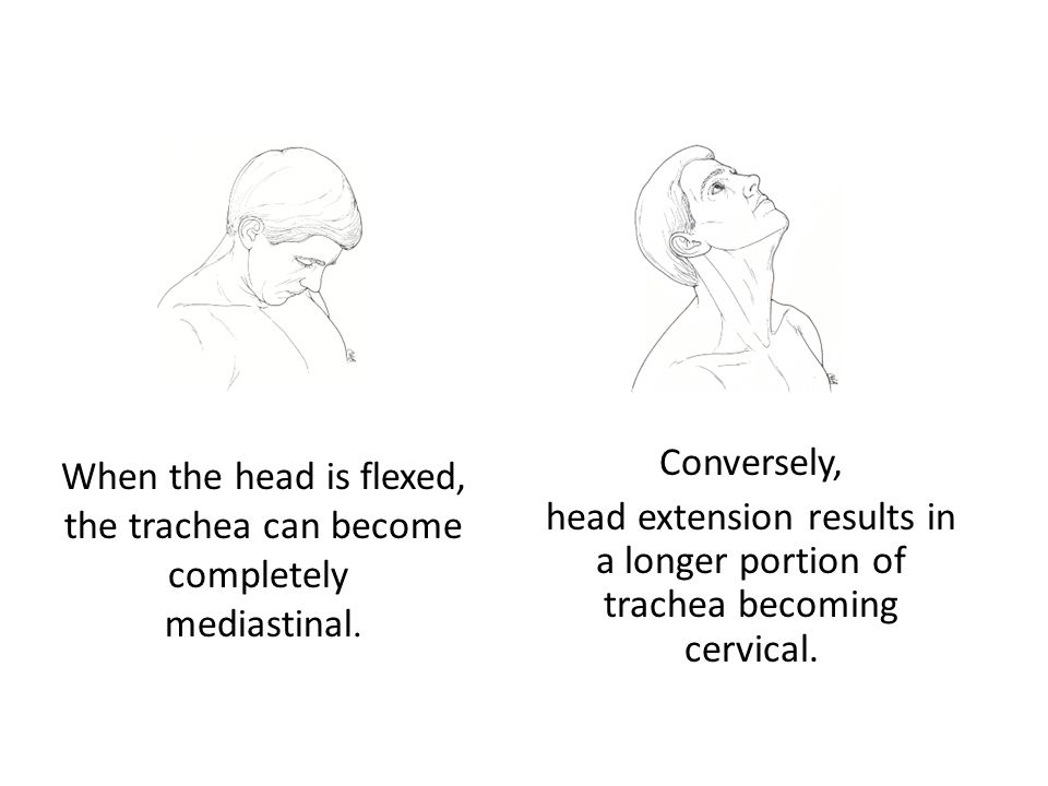 When the head is flexed, the trachea can become completely