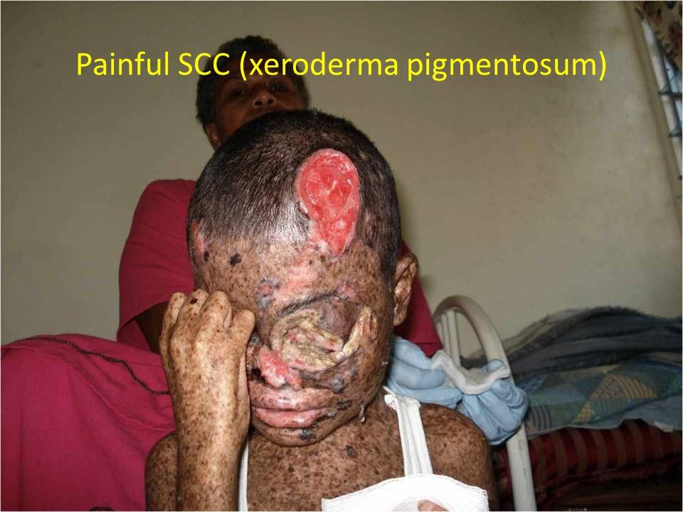 Painful SCC (xeroderma pigmentosum)