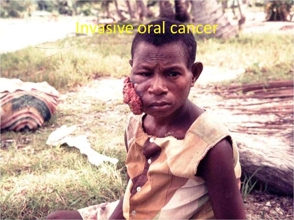 Invasive oral cancer