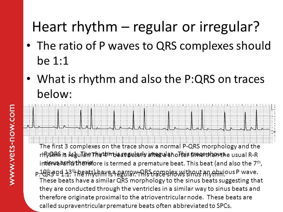 Heart rhythm – regular or irregular