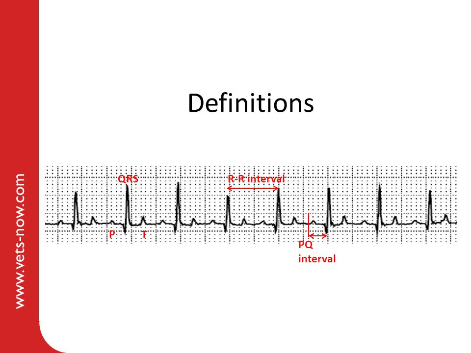 Definitions QRS R-R interval P T PQ interval