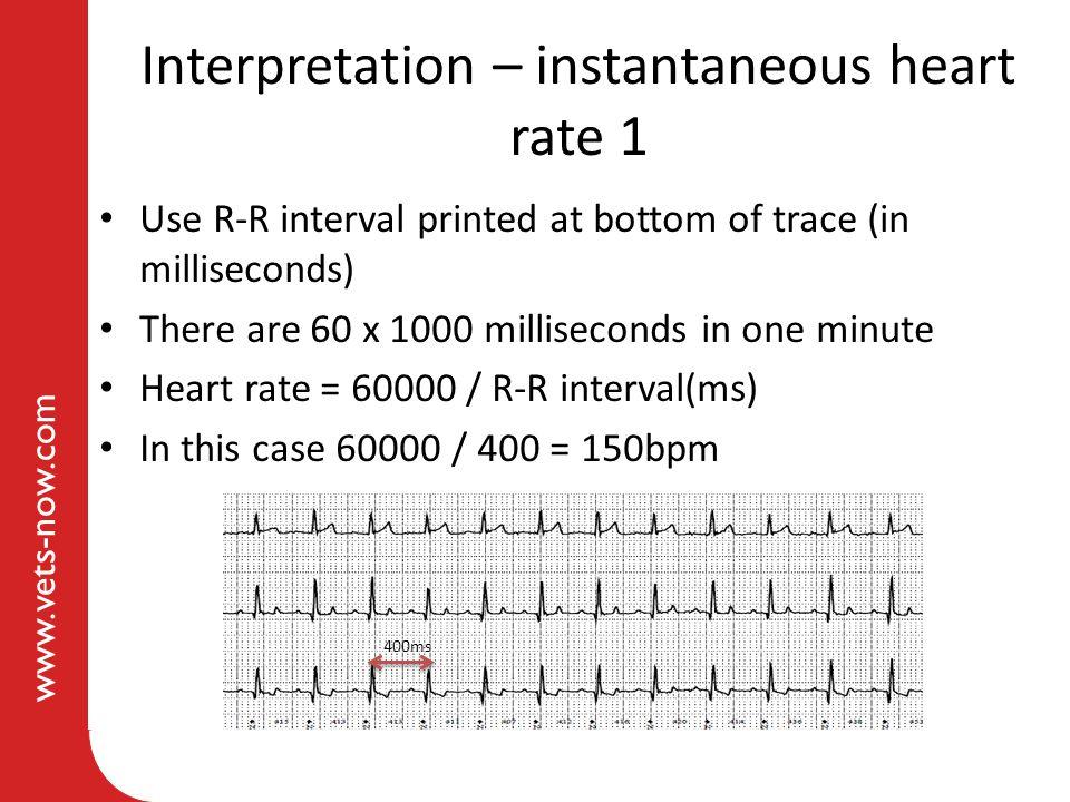 Interpretation – instantaneous heart rate 1