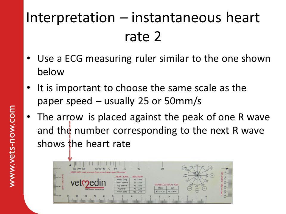 Interpretation – instantaneous heart rate 2