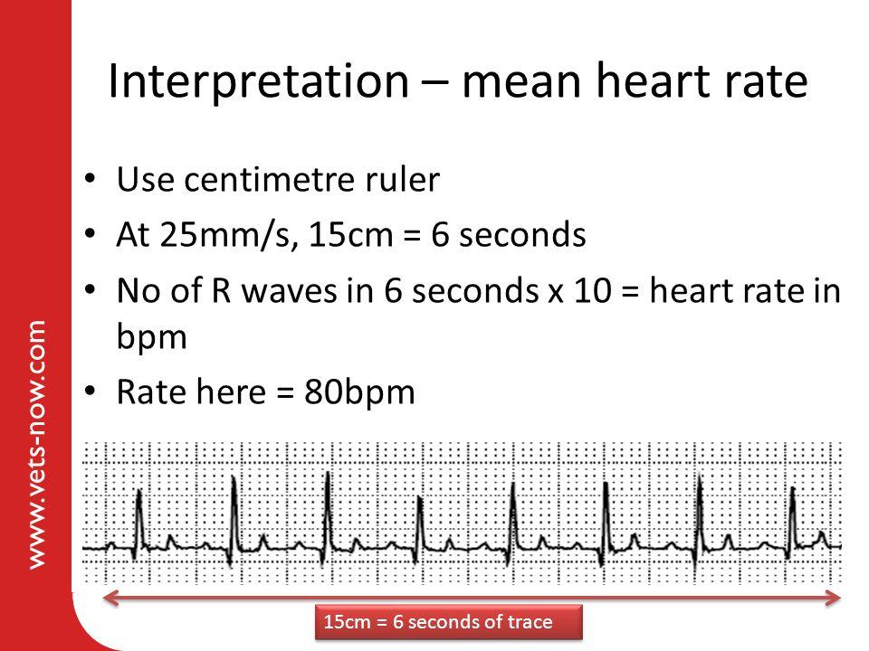 Interpretation – mean heart rate