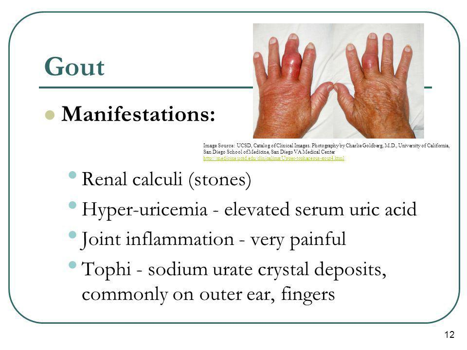 Gout Manifestations: Renal calculi (stones)