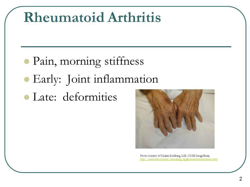 Rheumatoid Arthritis Pain, morning stiffness Early: Joint inflammation