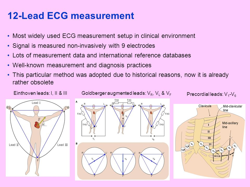 12-Lead ECG measurement Most widely used ECG measurement setup in clinical environment. Signal is measured non-invasively with 9 electrodes.