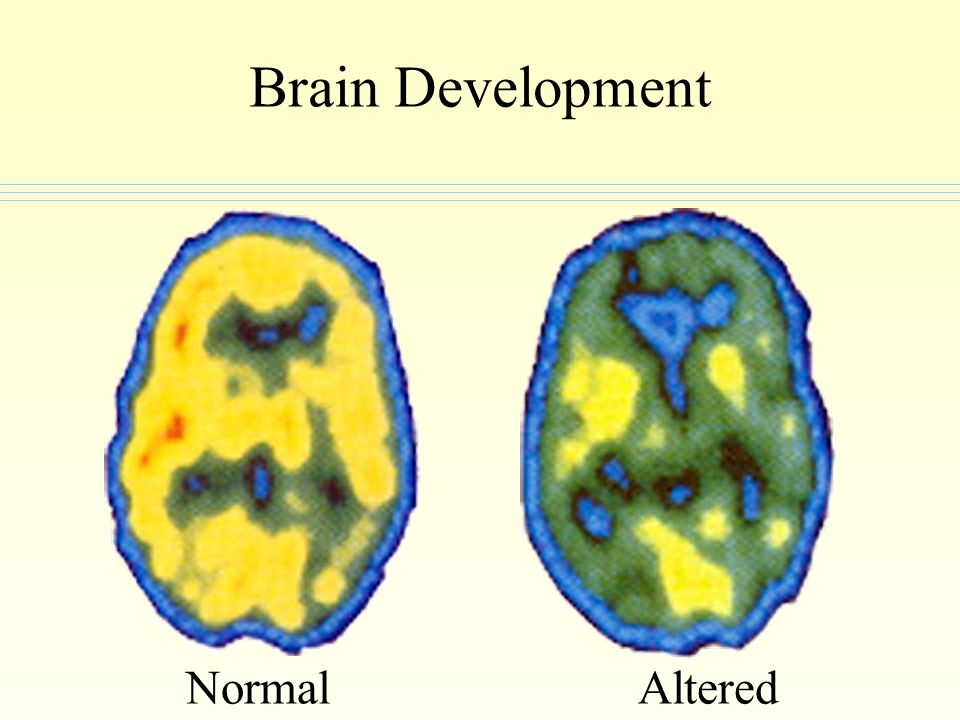 Brain Development Normal Altered