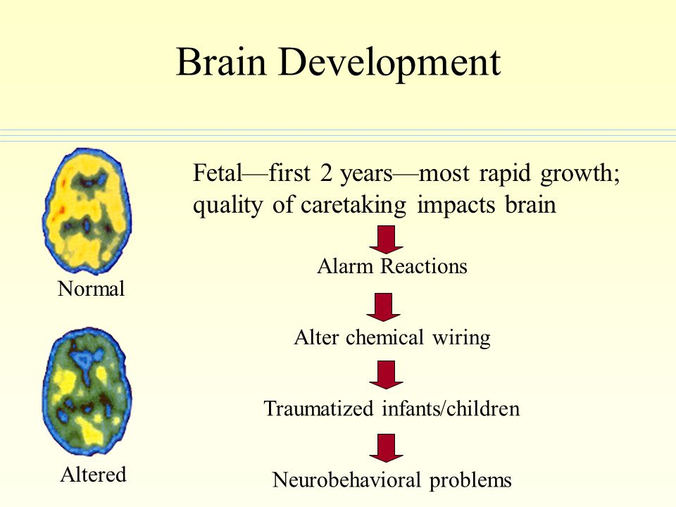 Brain Development Fetal—first 2 years—most rapid growth; quality of caretaking impacts brain. Alarm Reactions.