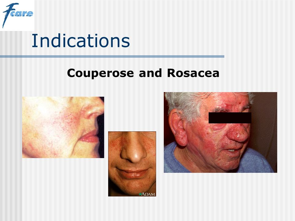 Indications Couperose and Rosacea