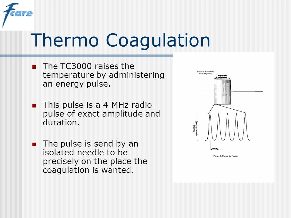 Thermo Coagulation The TC3000 raises the temperature by administering an energy pulse.