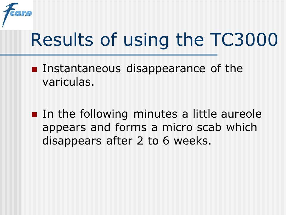 Results of using the TC3000 Instantaneous disappearance of the variculas.