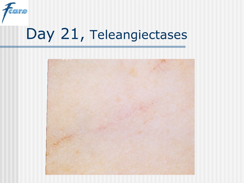 Day 21, Teleangiectases