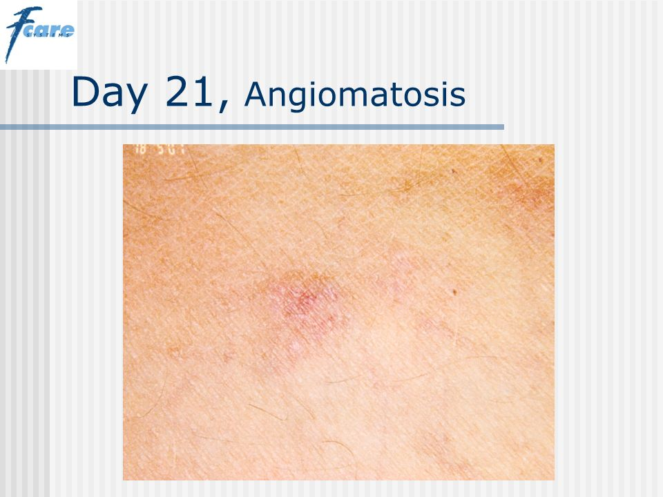 Day 21, Angiomatosis