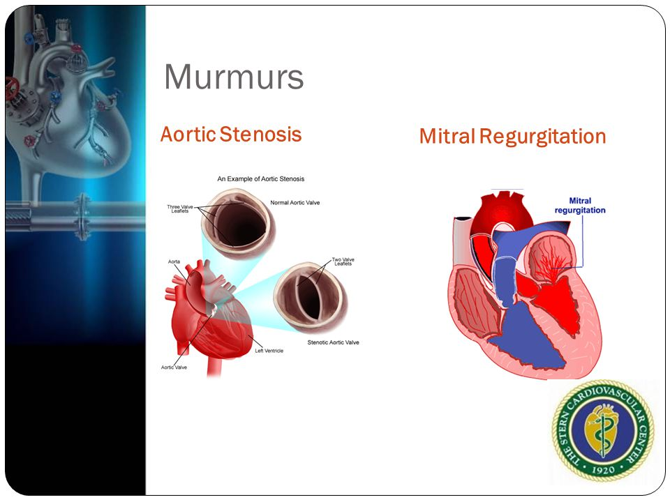 Murmurs Aortic Stenosis Mitral Regurgitation