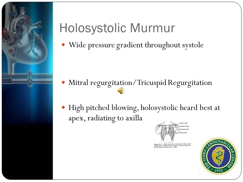 Holosystolic Murmur Wide pressure gradient throughout systole
