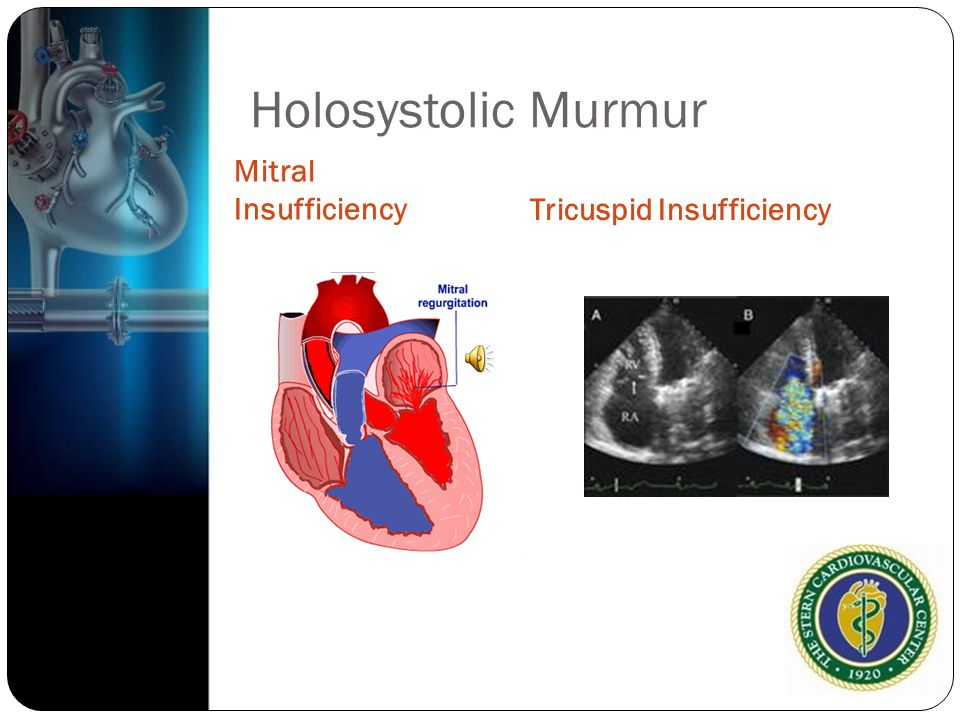 Holosystolic Murmur Mitral Insufficiency Tricuspid Insufficiency