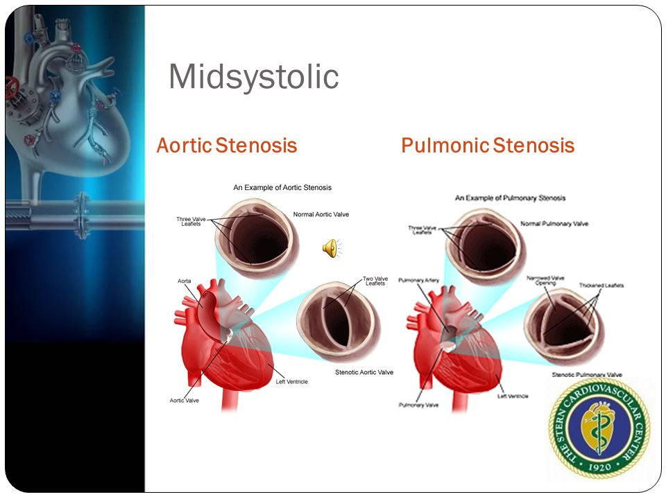 Midsystolic Aortic Stenosis Pulmonic Stenosis
