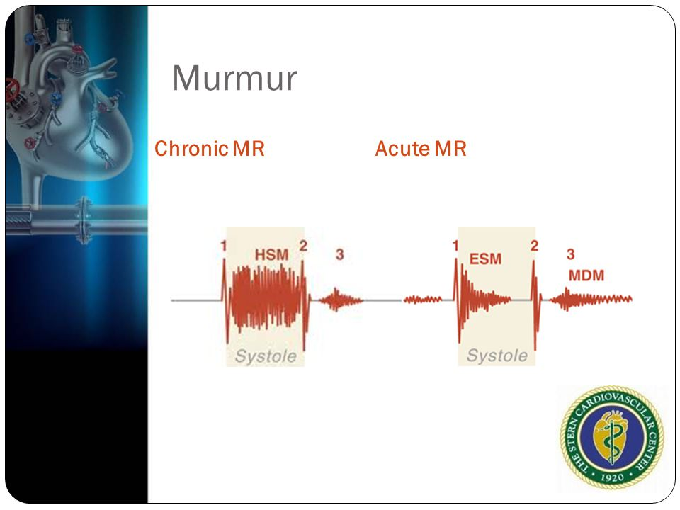 Murmur Chronic MR Acute MR