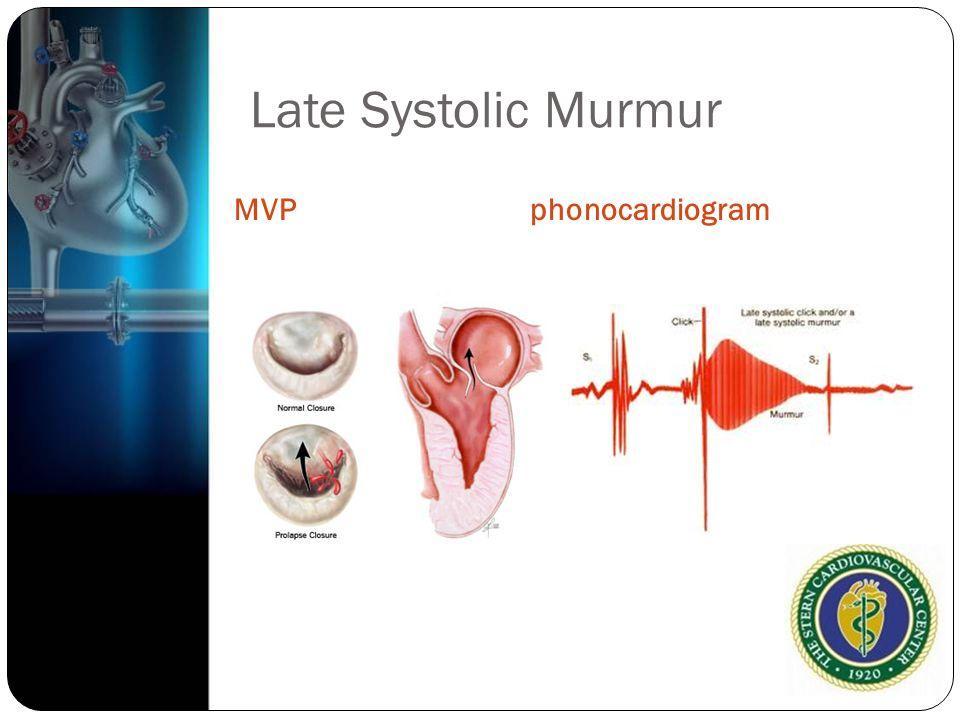Late Systolic Murmur MVP phonocardiogram