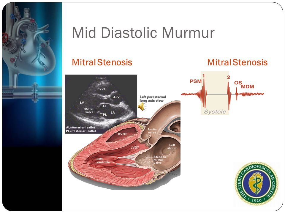 Mid Diastolic Murmur Mitral Stenosis Mitral Stenosis