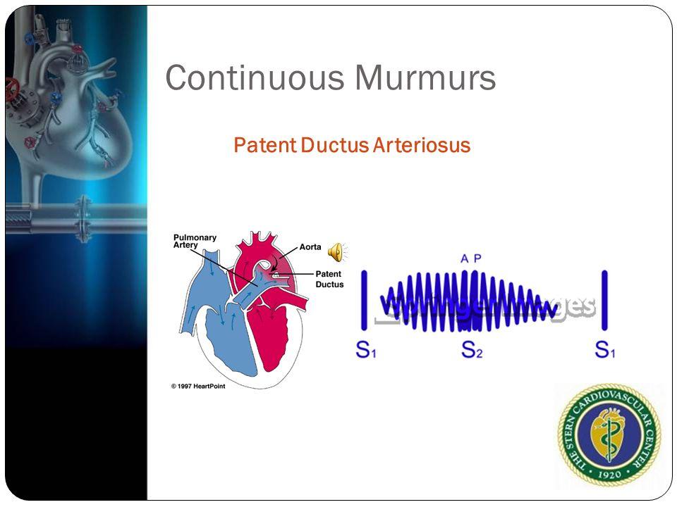 Continuous Murmurs Patent Ductus Arteriosus