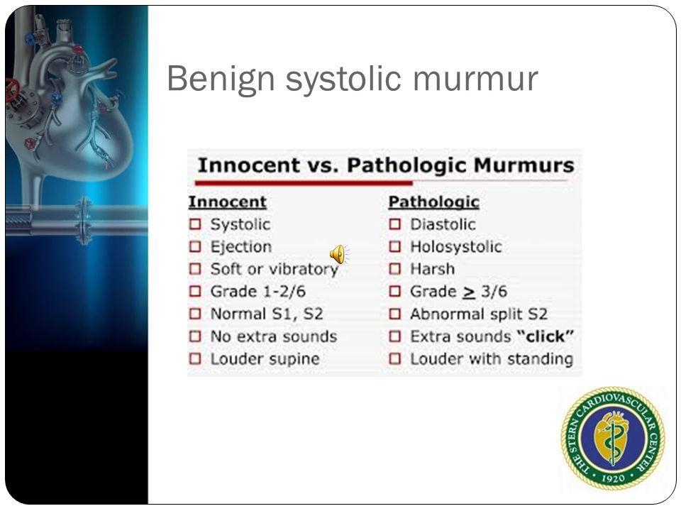 Benign systolic murmur