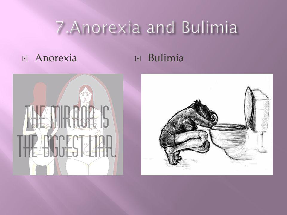 7.Anorexia and Bulimia Anorexia Bulimia