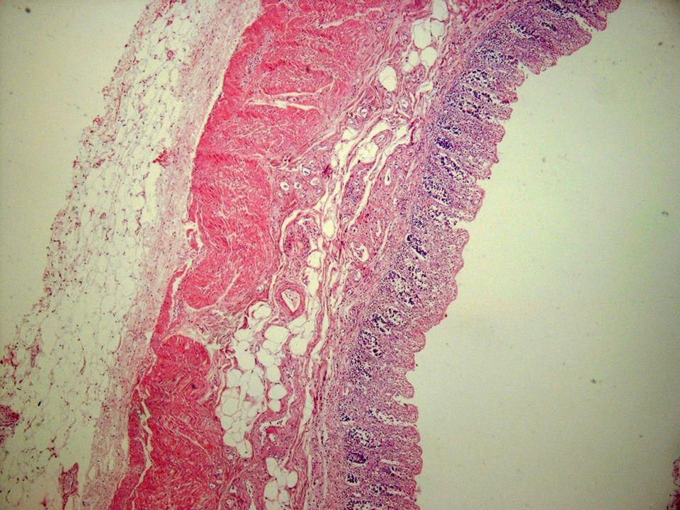 En esta microfotografía del caso anterior es evidente dl pérrdida del epitelio superficial y de la criptas