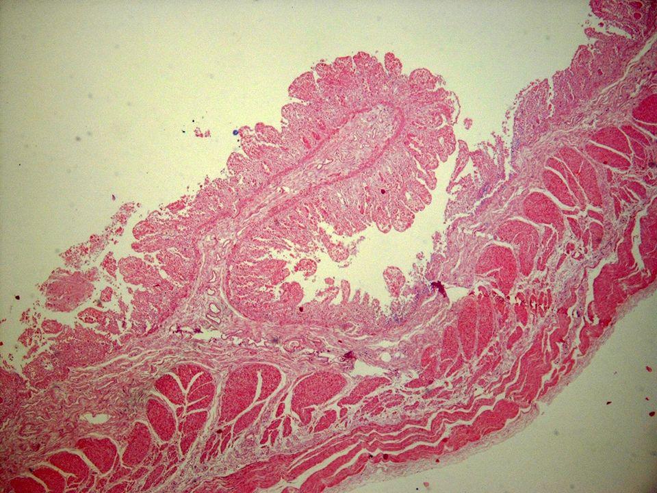 Un detalle par mostrar que tambiél la lámina propia, la muscular de la mucosa y submucos esán involucradas en el proceso