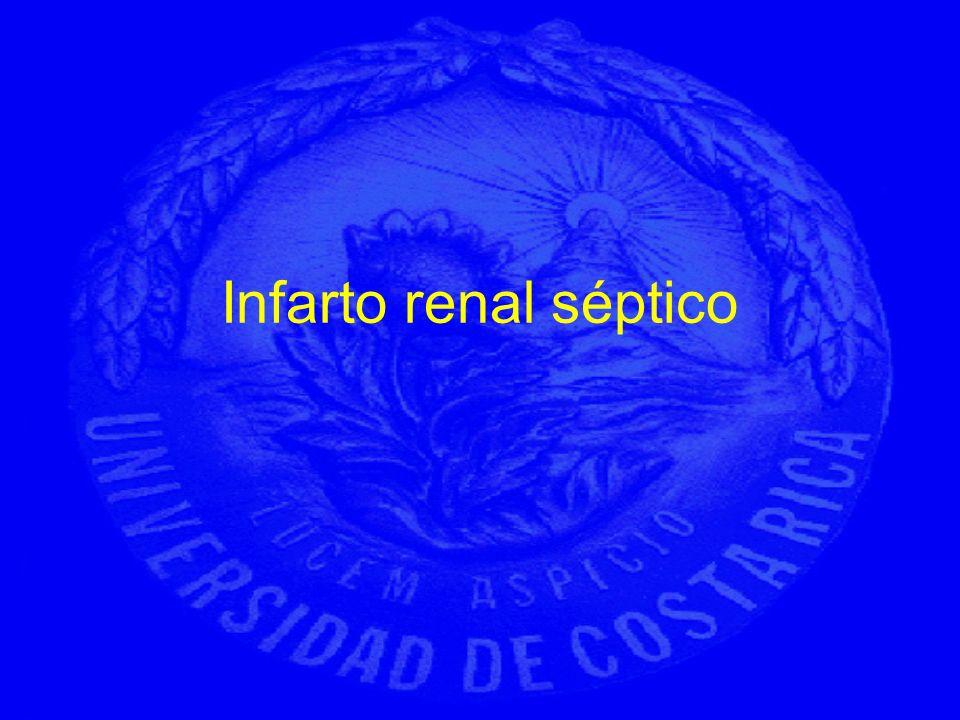Infarto renal séptico