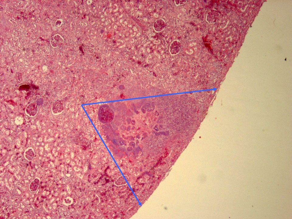 Lesión triangular claramente definida con el vértice en el ángulo agudo correspondiente aun vaso ocluido por un trombo que corta la circulación de esa zona sometiendo el tejido a la isquemia y posterior necrosis del tejido