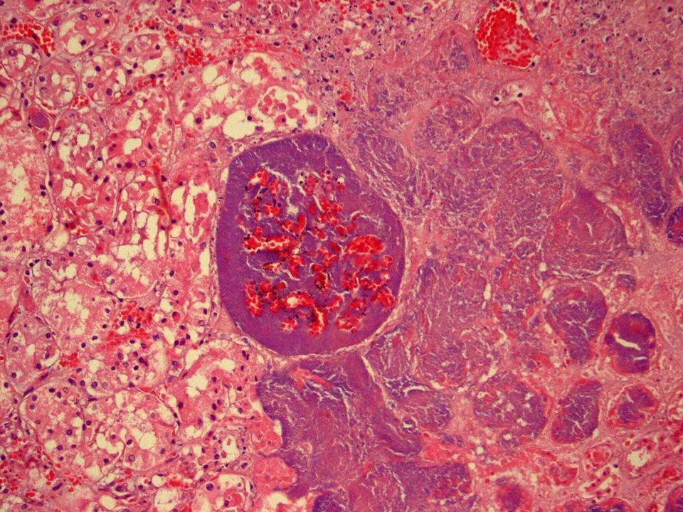 Detalle del vaso ocluido fundamentalmente por colonias bacterianas