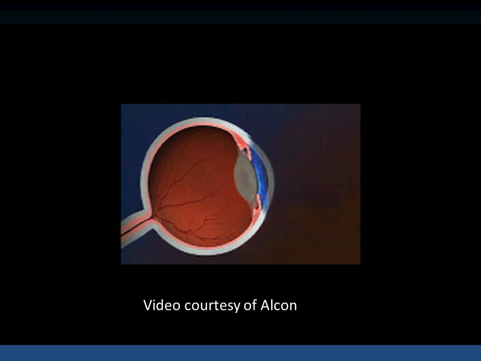 Video courtesy of Alcon
