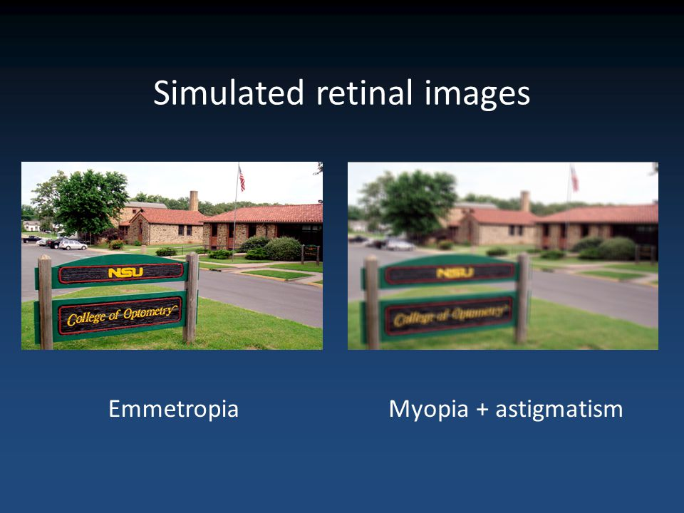 Simulated retinal images