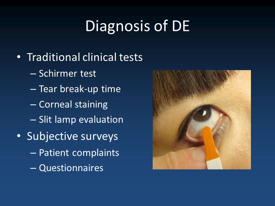 Diagnosis of DE Traditional clinical tests Subjective surveys