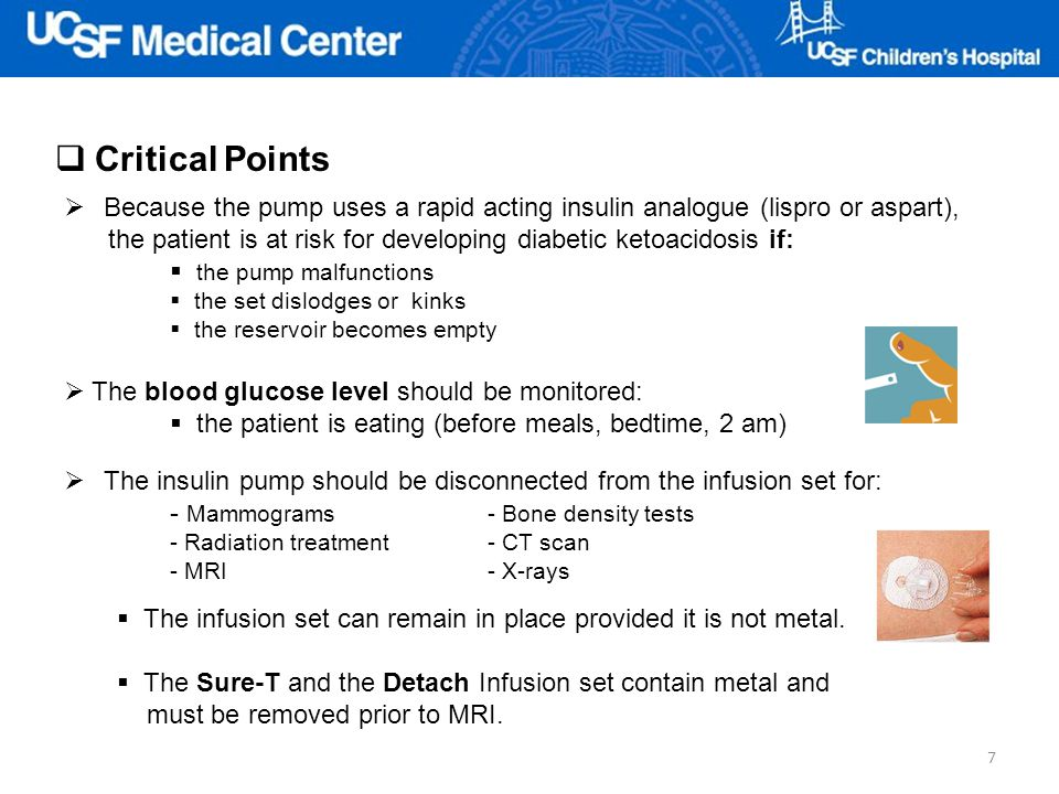 Critical Points Because the pump uses a rapid acting insulin analogue (lispro or aspart),