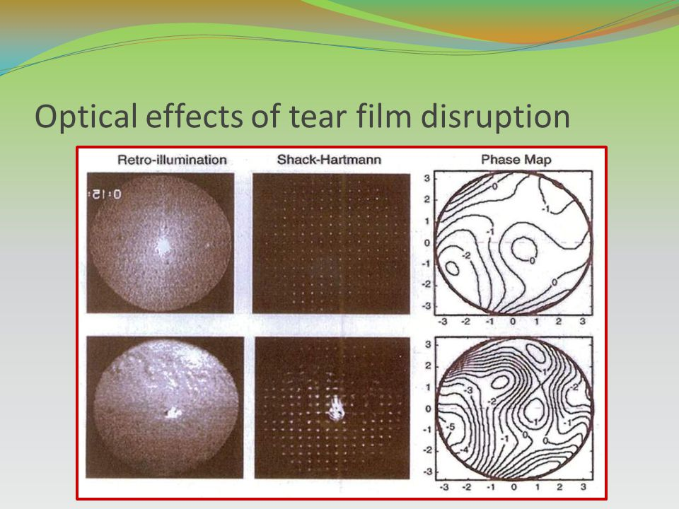 Optical effects of tear film disruption