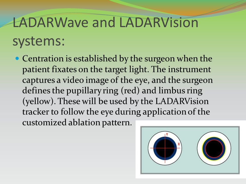 LADARWave and LADARVision systems: