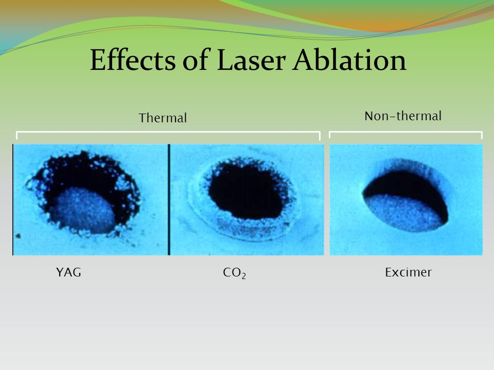 Effects of Laser Ablation