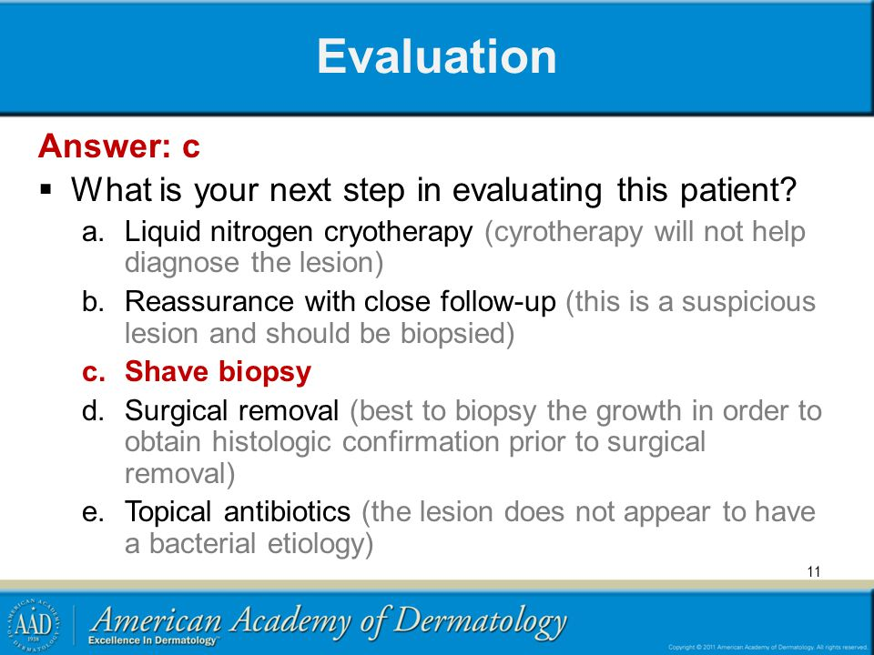Evaluation Answer: c. What is your next step in evaluating this patient