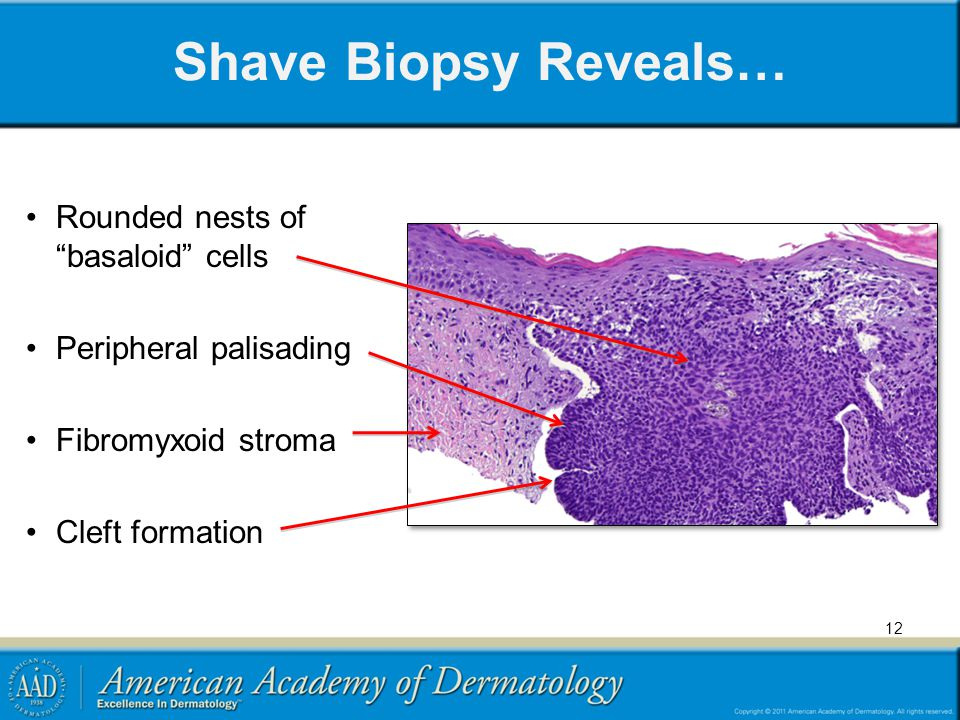 Shave Biopsy Reveals… Rounded nests of basaloid cells