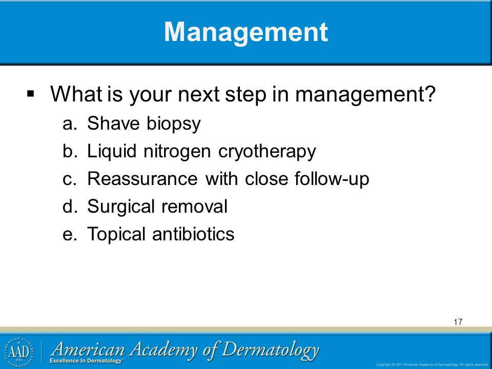 Management What is your next step in management Shave biopsy
