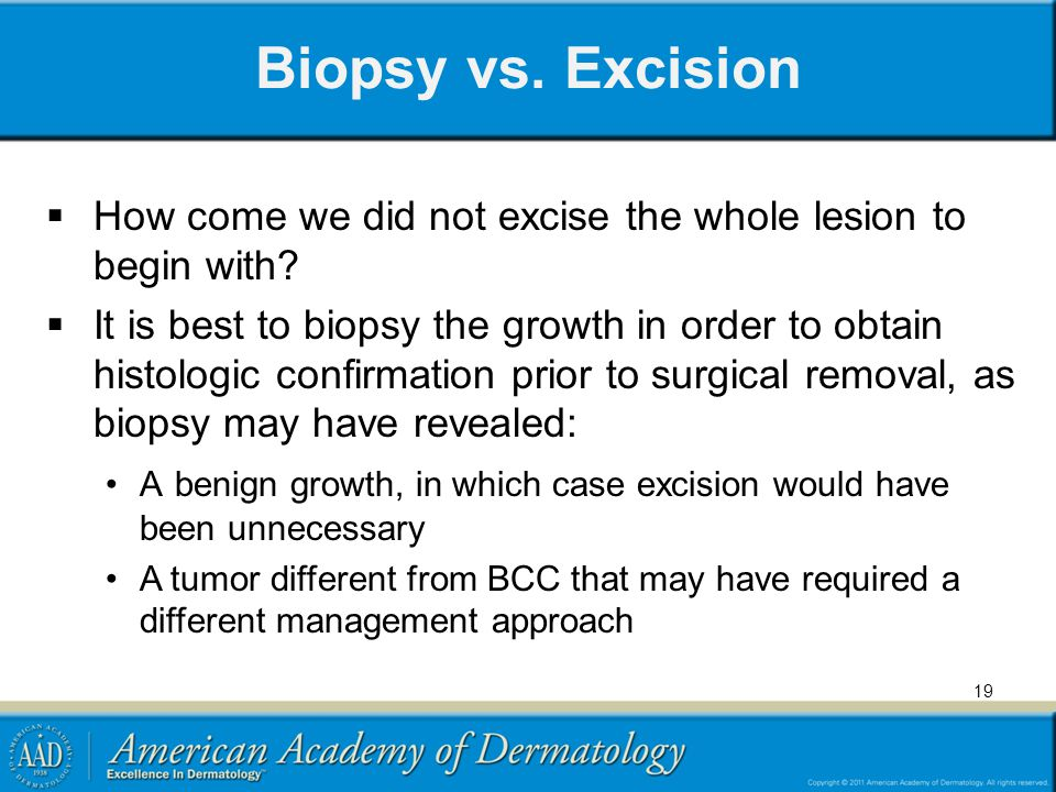 Biopsy vs. Excision How come we did not excise the whole lesion to begin with