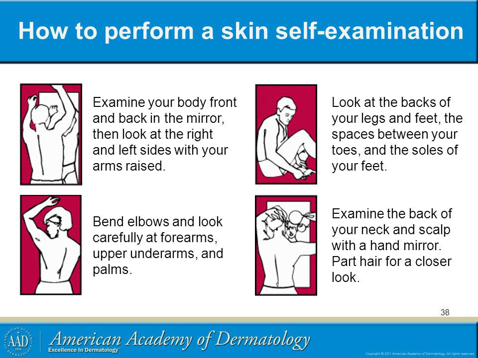 How to perform a skin self-examination