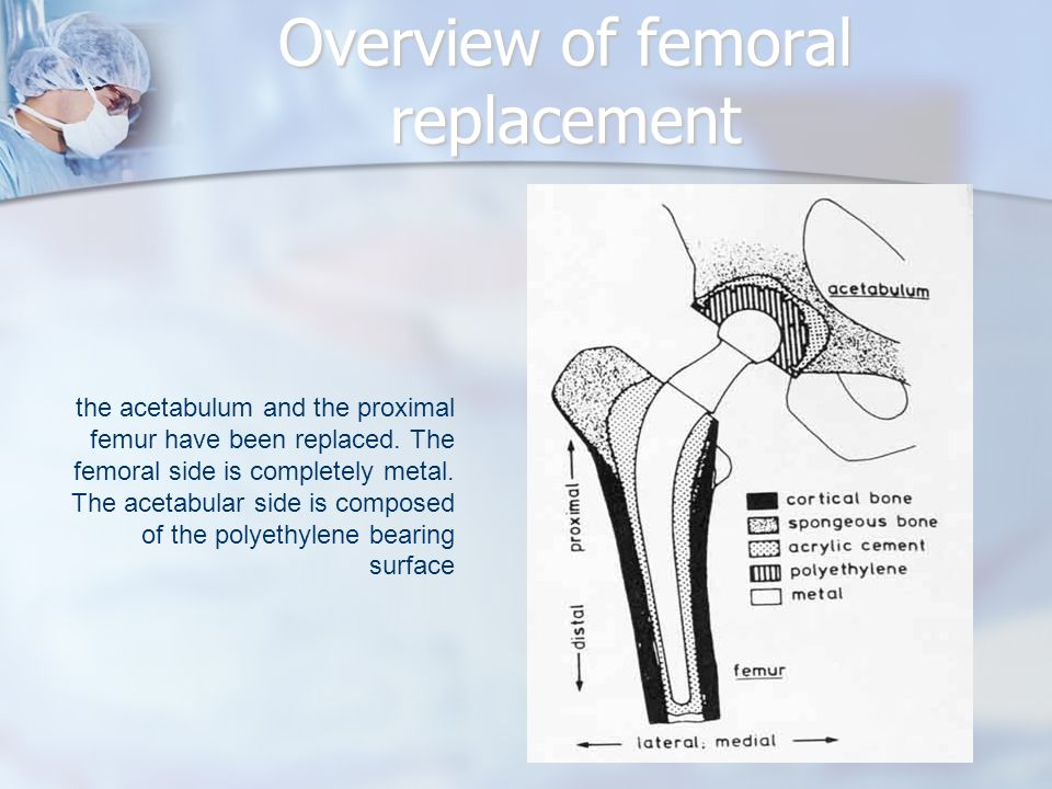 Overview of femoral replacement